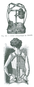 Orthodpaedic corset from 'The Corset; A Cultural History' by Valerie Steele